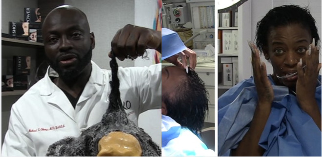 """dr.-michael-obeng-performs-miracle-surgery-on-""""gorilla-glue-hair""""-woman,-she's-finally-free"""